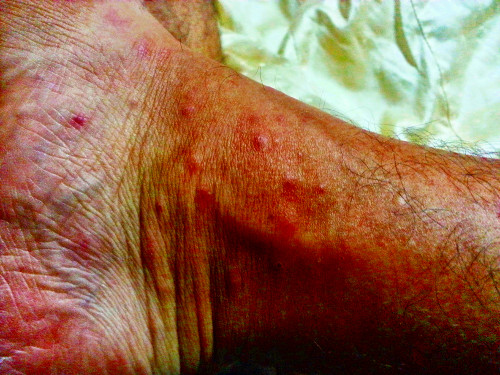 Mosquito bites on my foot