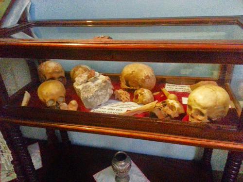 Shepherds' skulls